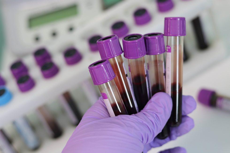Testování protilátek proti COVID-19